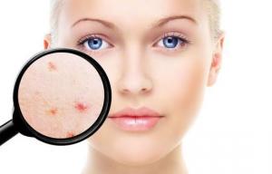 Steeds meer volwassenen met acne